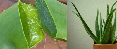 Aloe Vera – For Your First Aid Kit – 3/18/12