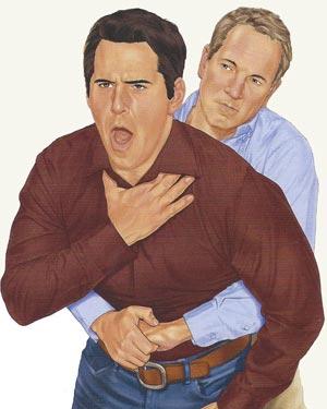 the-heimlich-maneuver