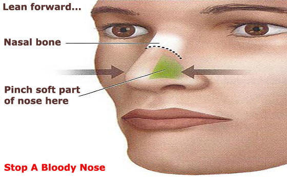 How To Stop A Bloody Nose Or Bleeding From The Mouth